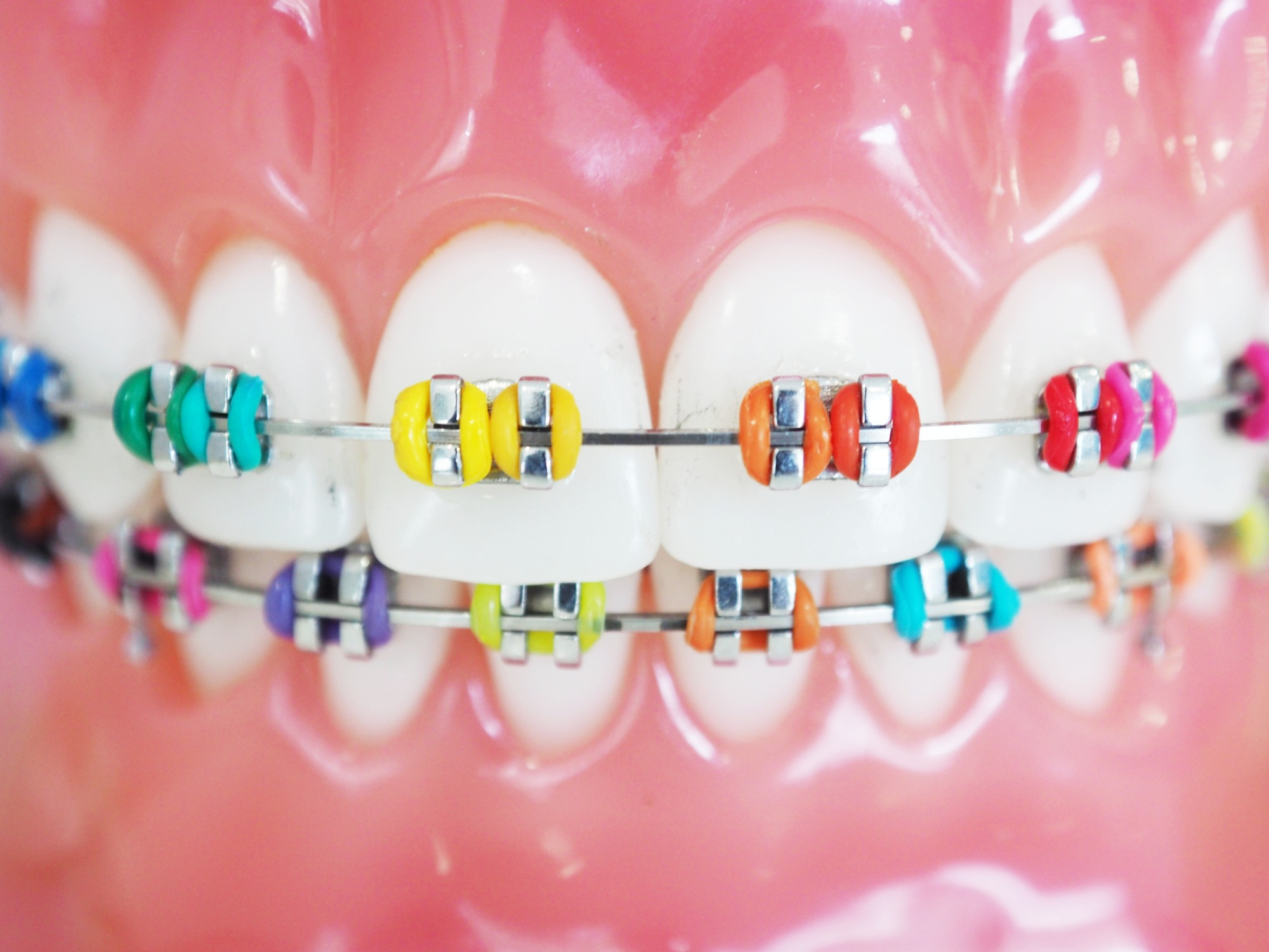 Braces with color bands