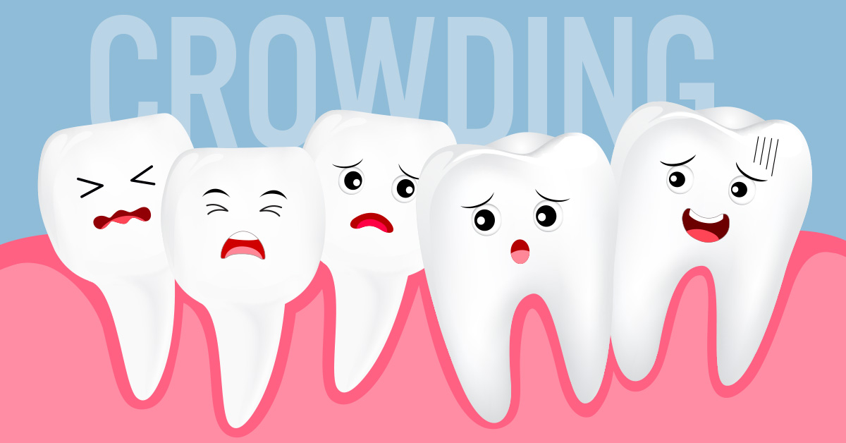 Frequently Asked Questions About Dental Crowding