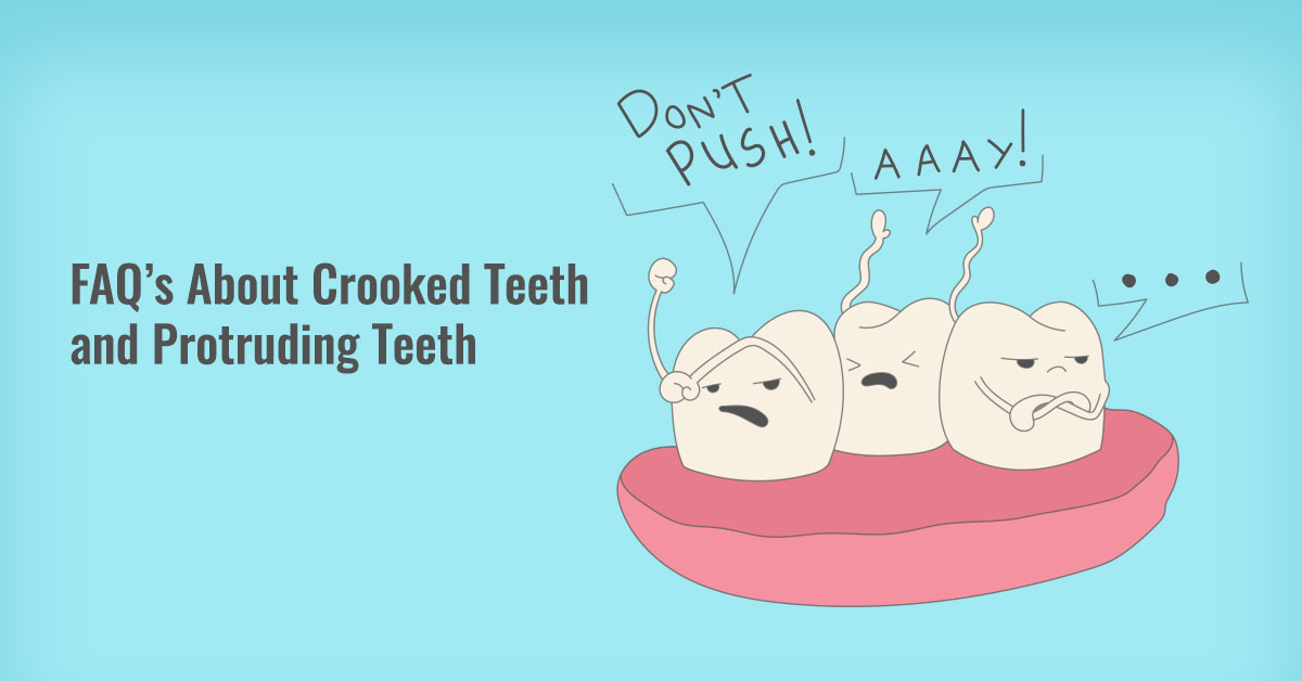 Frequently Asked Questions About Crooked Teeth and Protruding Teeth