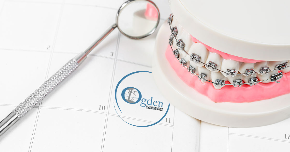 How Often Do You Need Orthodontist Appointments with Braces?