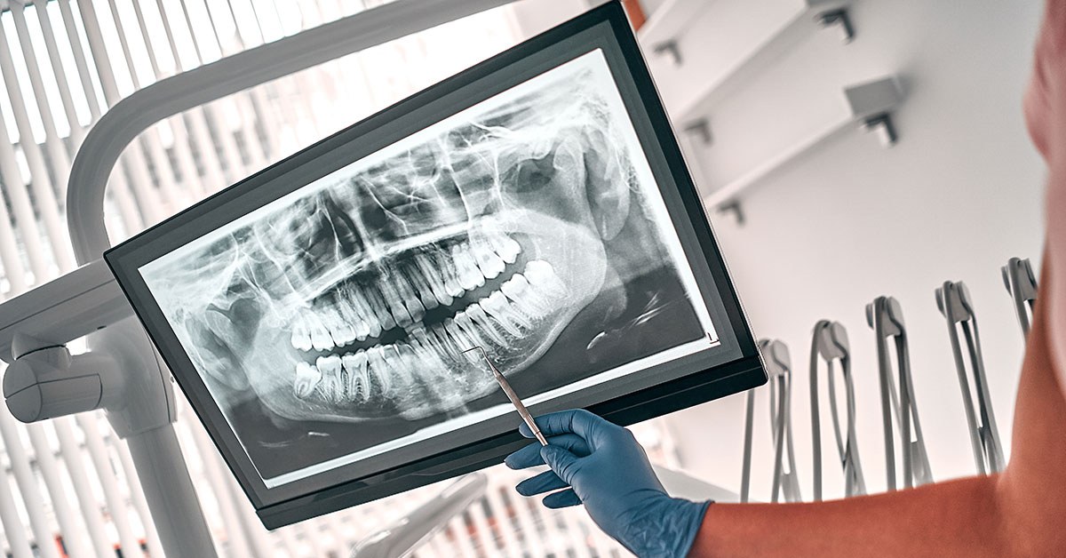 Frequently Asked Questions About Dental X-Rays in Orthodontic Care