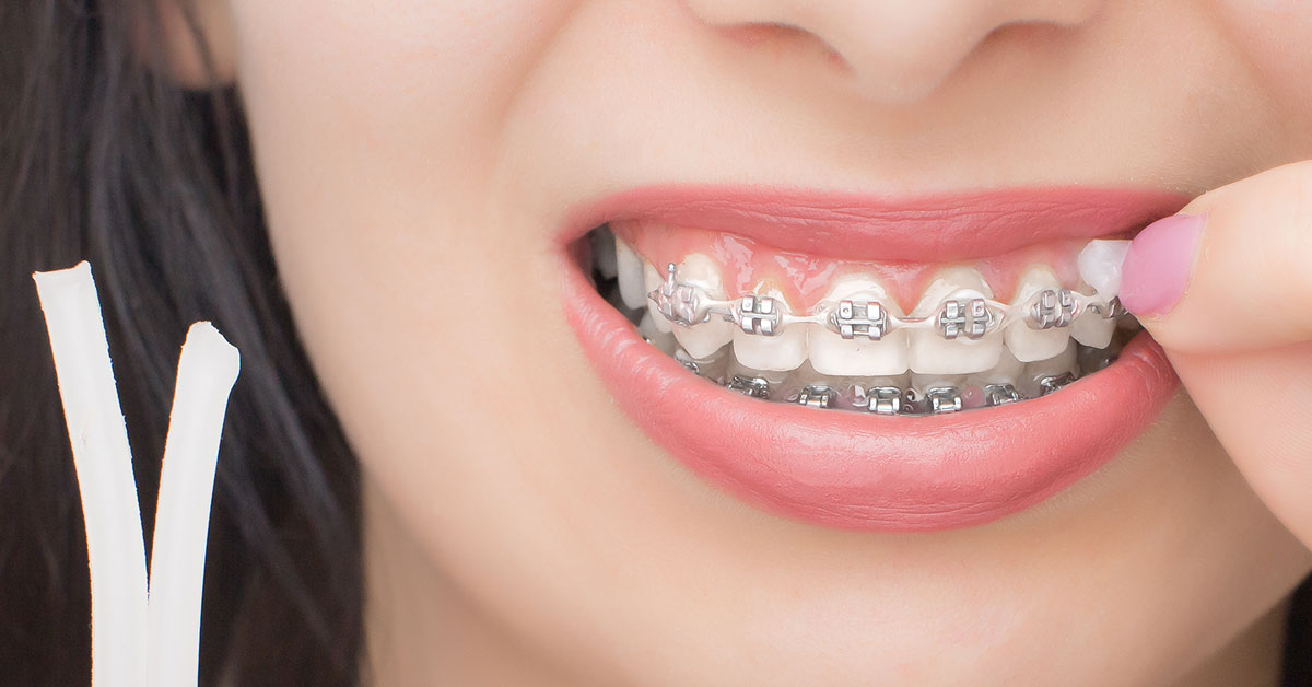 Frequently Asked Questions About Using Dental Wax on Braces