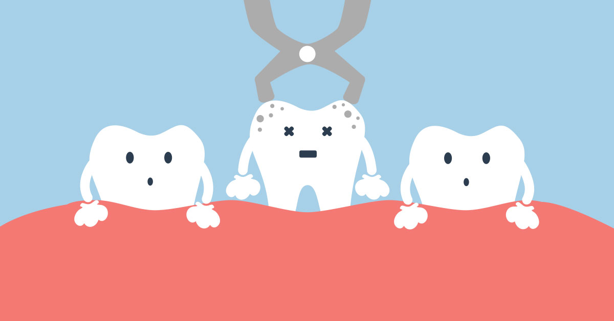 Some Common Reasons for Having a Tooth Extracted